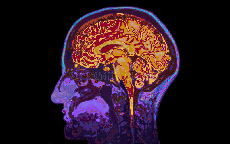 Image IRM du cerveau de représentation principal photos stock