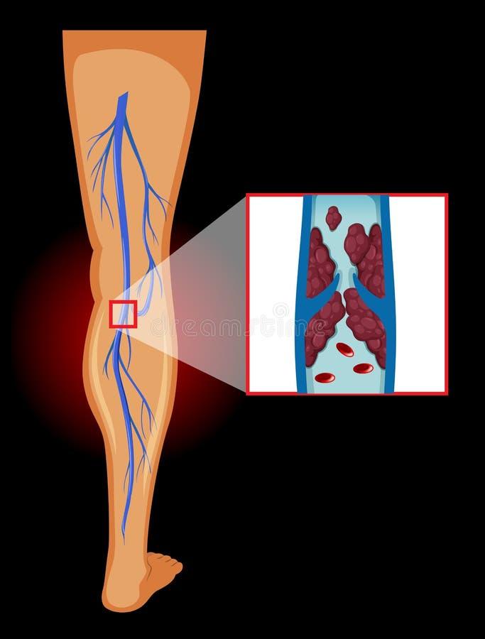 Image médicale des veines variqueuses illustration libre de droits