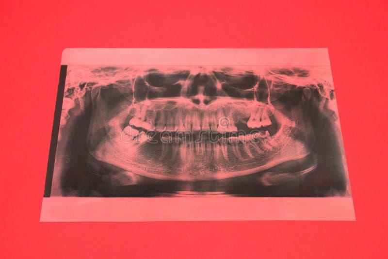 Image panoramique de rayon X des dents Quelques dents ont enlevé, problème avec des dents sur le fond rouge photo libre de droits