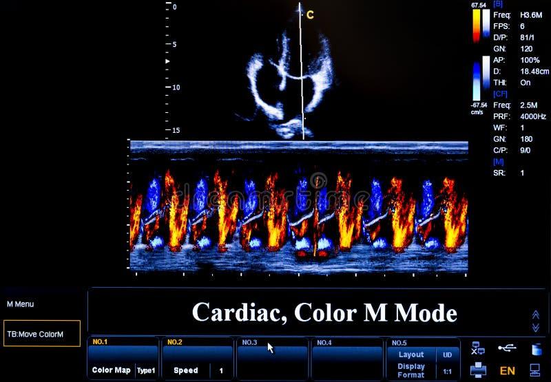Imagem colorida do monitor do ultrassom cardiac fotos de stock royalty free