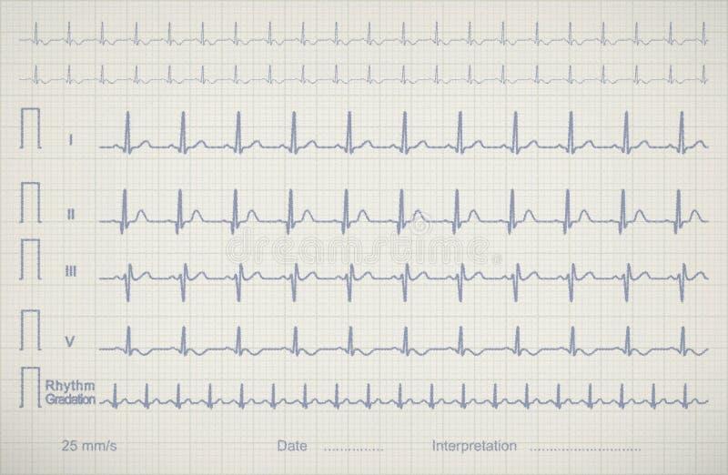 Imagem da carta de ECG do paciente médico ilustração royalty free
