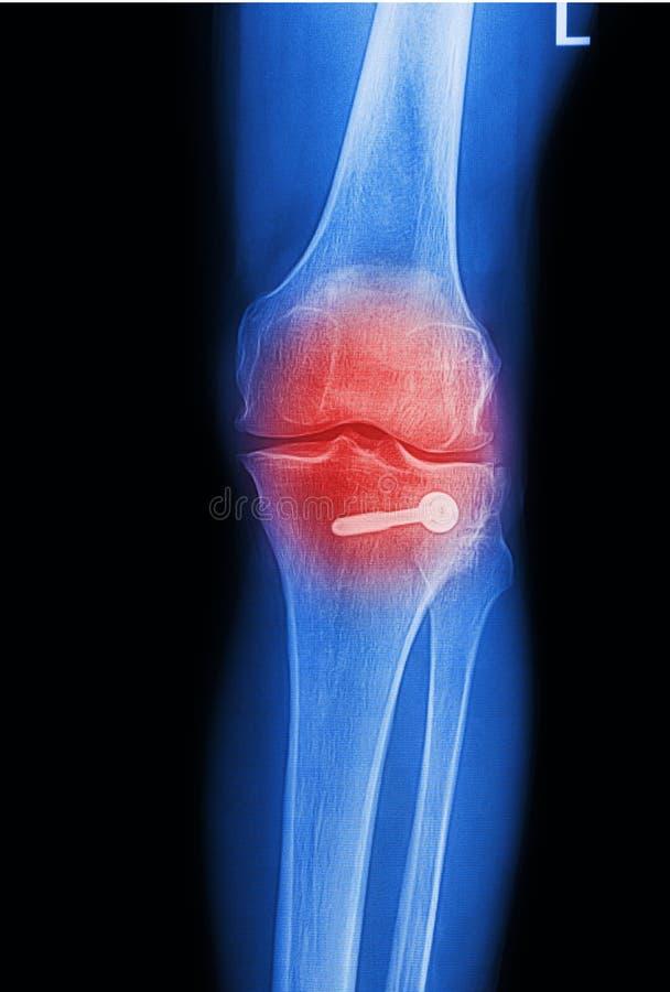 Imagem da raia X dolorosa da articulação do joelho foto de stock