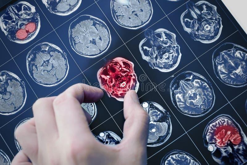 Imagem da varredura de MRI do cérebro paciente imagens de stock royalty free