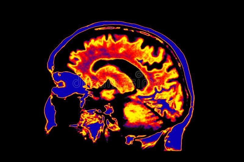 Imagem de Colorized MRI do cérebro mostrando principal foto de stock royalty free