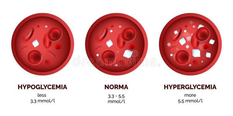 Imagem de Infographic dos níveis do açúcar no sangue isolados no branco ilustração do vetor