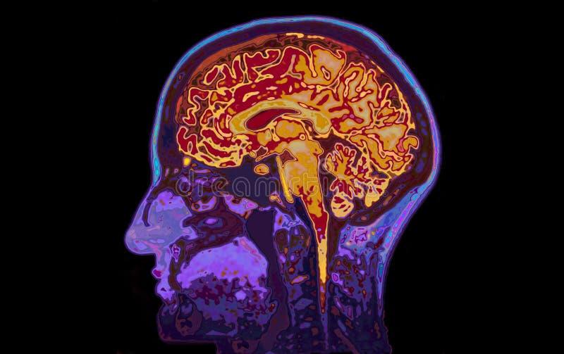 Imagem de MRI do cérebro mostrando principal fotos de stock