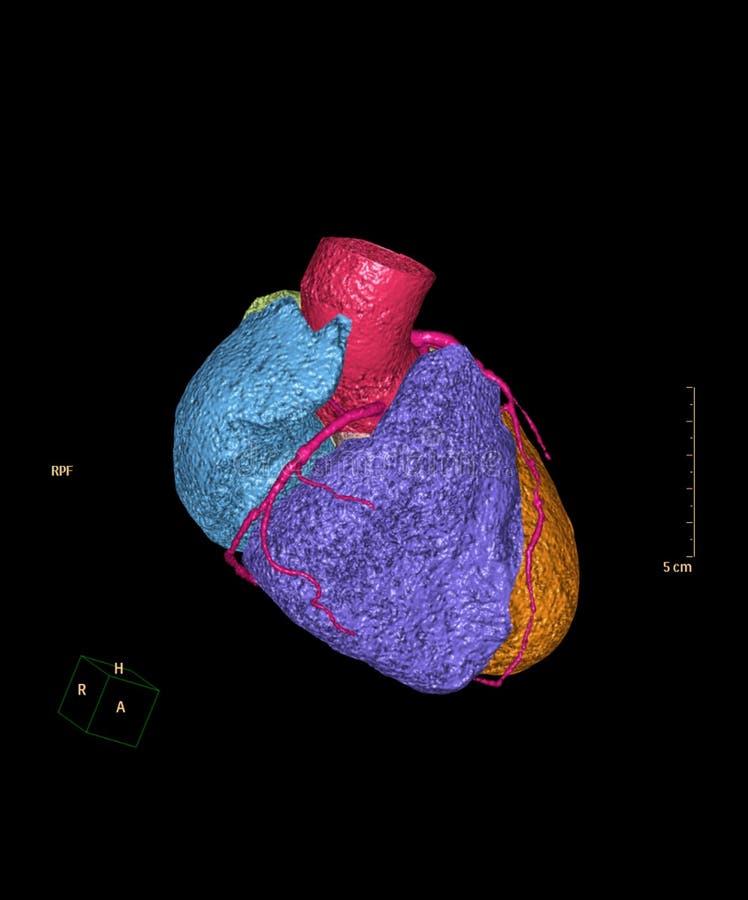 Imagem de renderização 3D da artéria coronária CTA imagens de stock royalty free