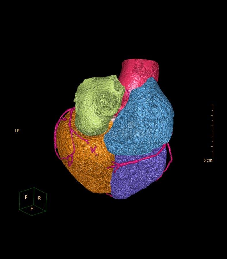 Imagem de renderização 3D da artéria coronária CTA fotografia de stock royalty free