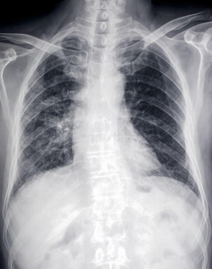 Imagem dianteira do raio X do coração e da caixa imagem de stock royalty free