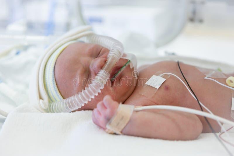 Imagem do bebê prematuro na incubadora fotos de stock
