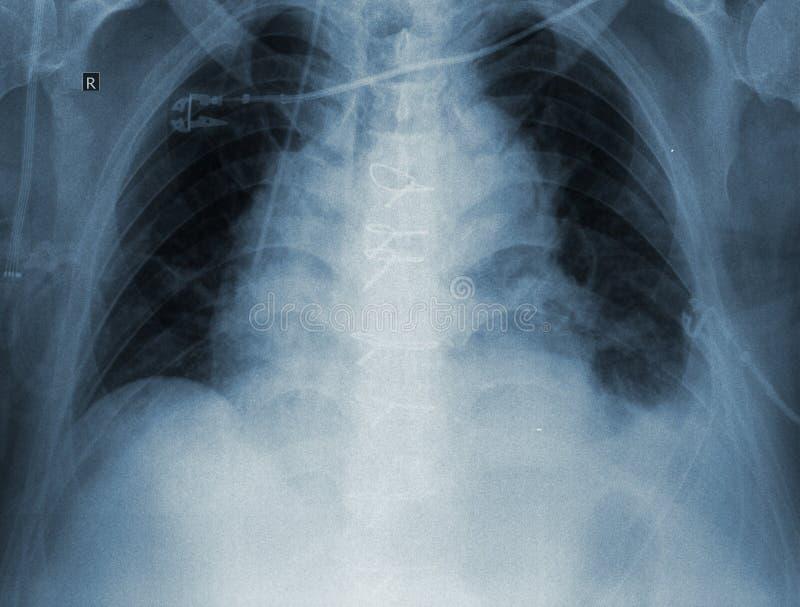 imagem do R-controle dos pulmões pacientes fotos de stock