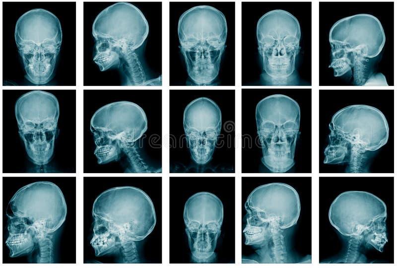 Imagem do raio X do cr?nio da cole??o fotografia de stock