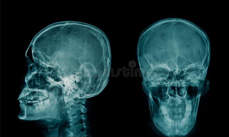 Imagem do raio X do cr?nio humano fotos de stock royalty free