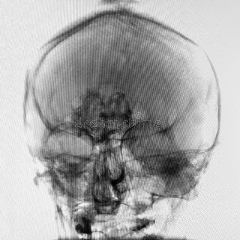 Imagem do raio X da cabeça humana foto de stock royalty free