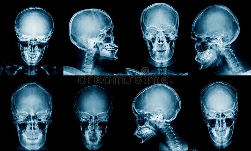 Imagem do raio X da coleção imagem de stock