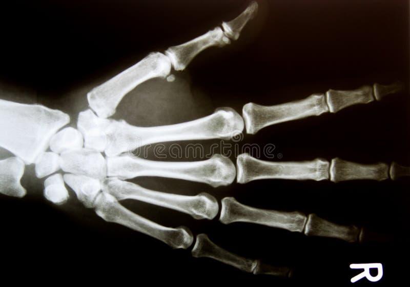 Imagem do raio X da mão humana normal saudável imagem de stock