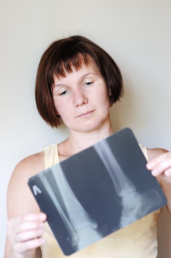 Imagem do raio X da terra arrendada da mulher imagens de stock