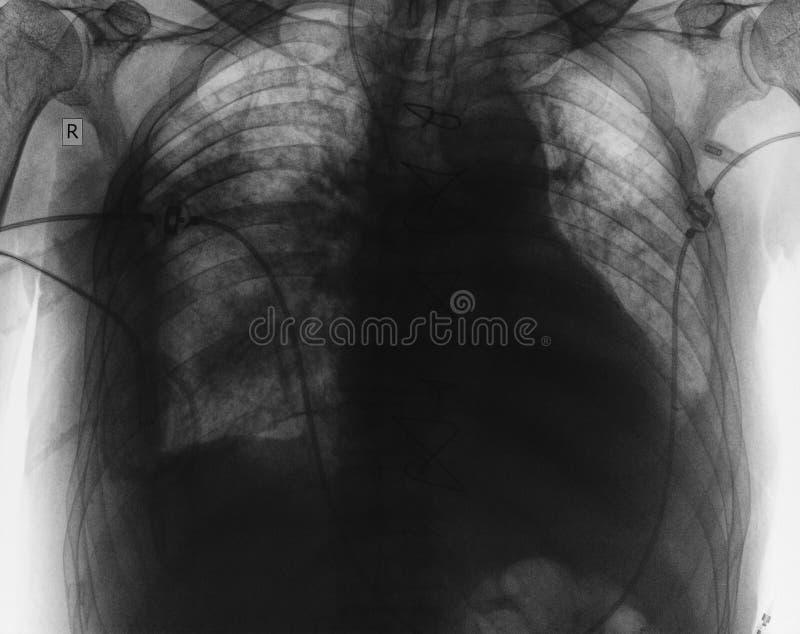 Imagem do raio X de órgãos torácicos do paciente fotos de stock