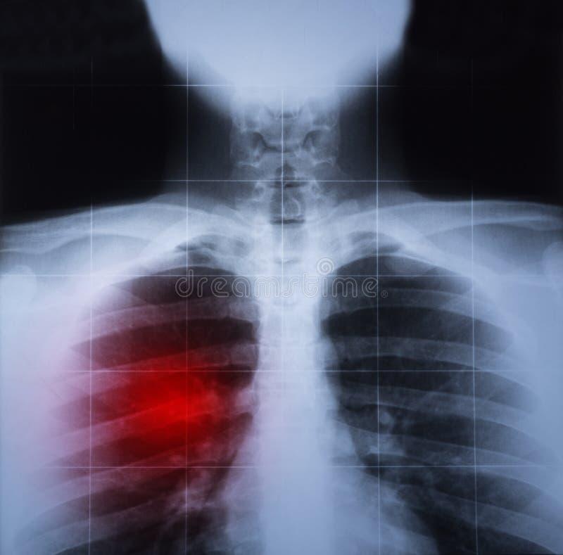 A imagem do raio de X da caixa e da doença pulmonar destacou no vermelho imagens de stock