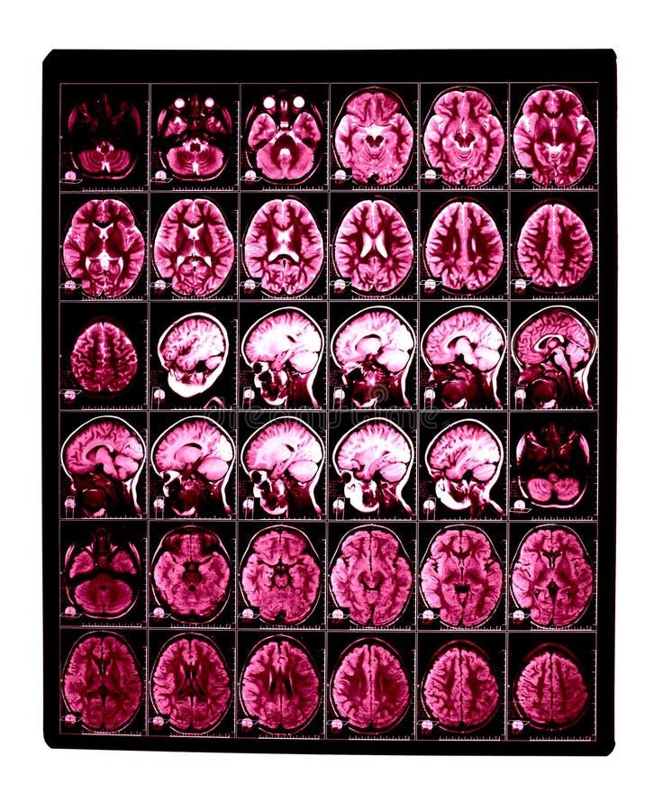 Imagem do raio X do cérebro fotografia de stock royalty free