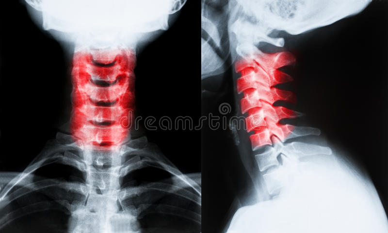 Imagem do raio X do pescoço foto de stock