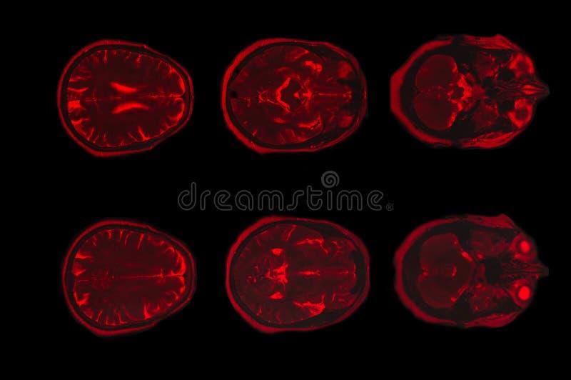 Imagem do raio X do tomografia computorizada do cérebro imagens de stock royalty free