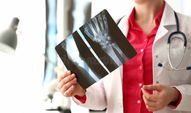 Imagem do raio X do osso do doutor Holding Right Hand da mulher fotos de stock royalty free