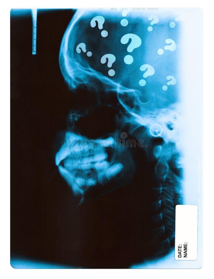 Imagem do raio X foto de stock royalty free