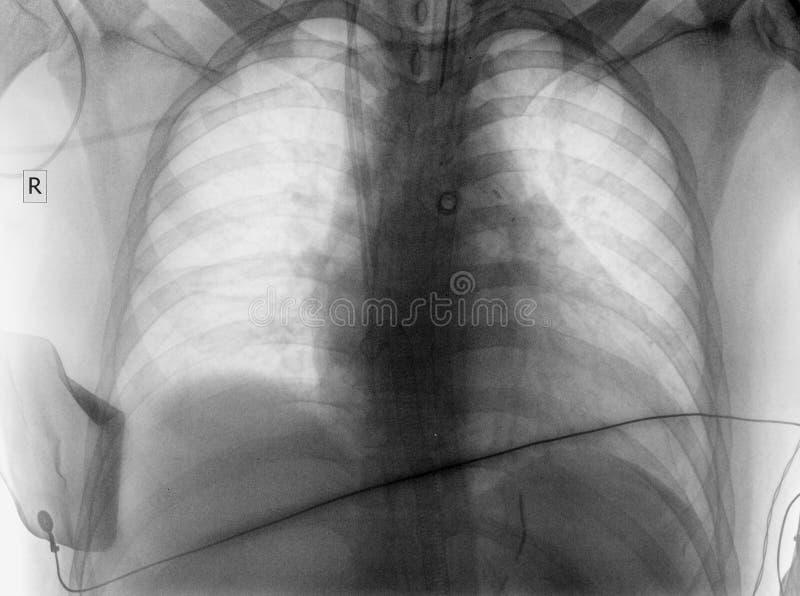 Imagem do roentgen do paciente em ICU ilustração do vetor