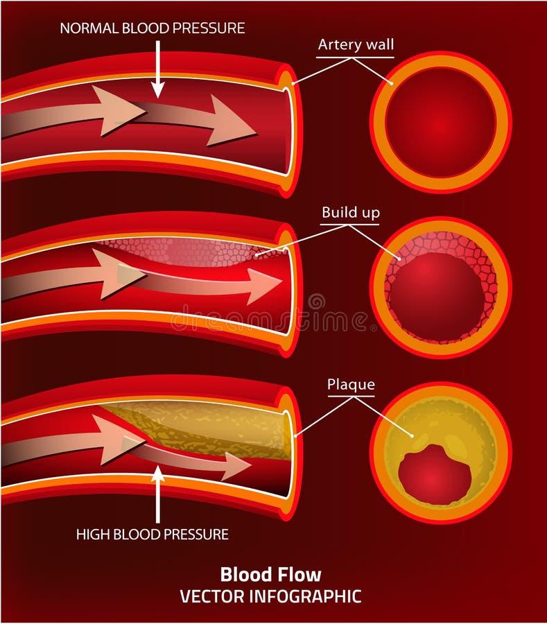 Imagem do vetor do sangue ilustração stock