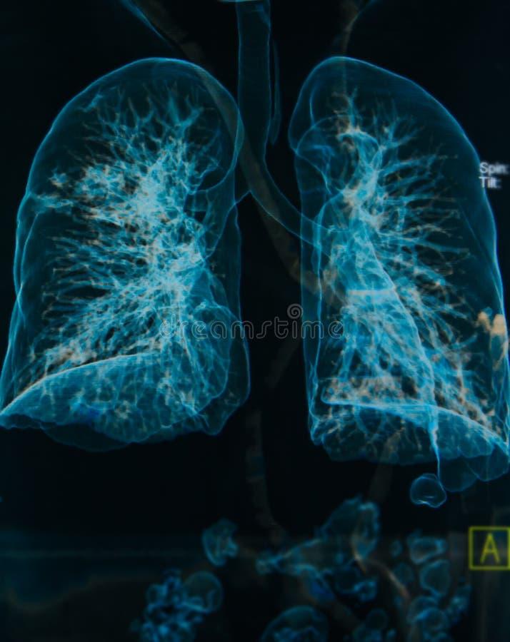 Imagem dos pulmões 3d dos raios X de caixa fotografia de stock royalty free