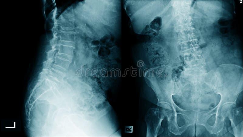 Imagem lombar do raio X do spondylosis ilustração royalty free