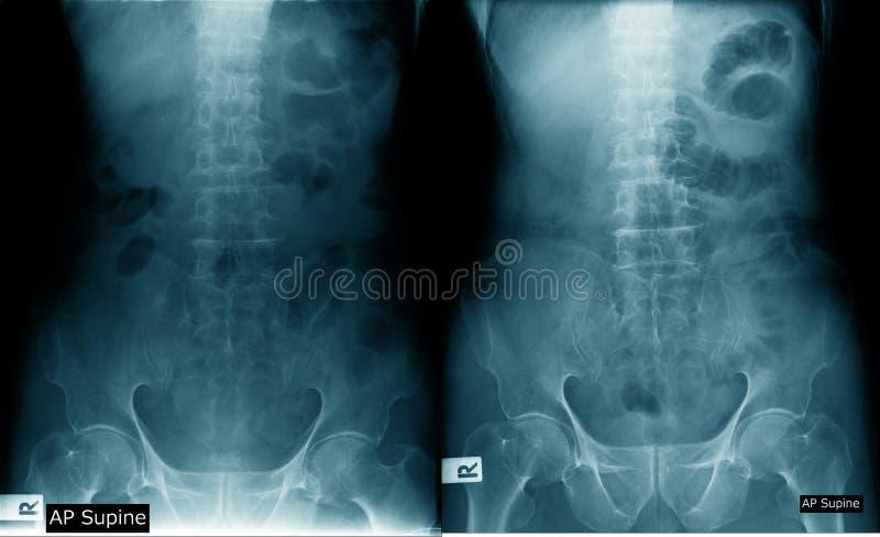 Imagem lombar do raio X do spondylosis foto de stock