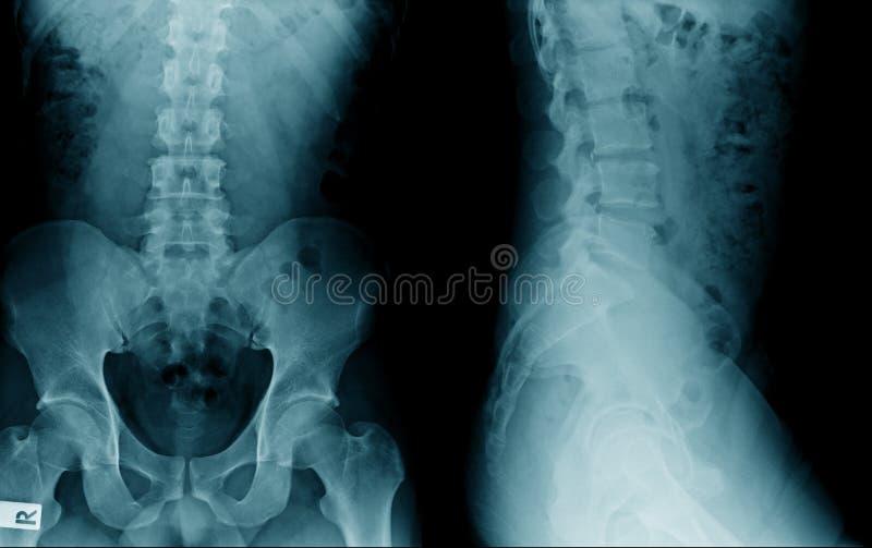 Imagem lombar do raio X do spondylosis fotografia de stock royalty free