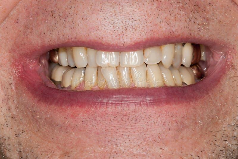 Imagem macro dos dentes enchidos imagem de stock royalty free