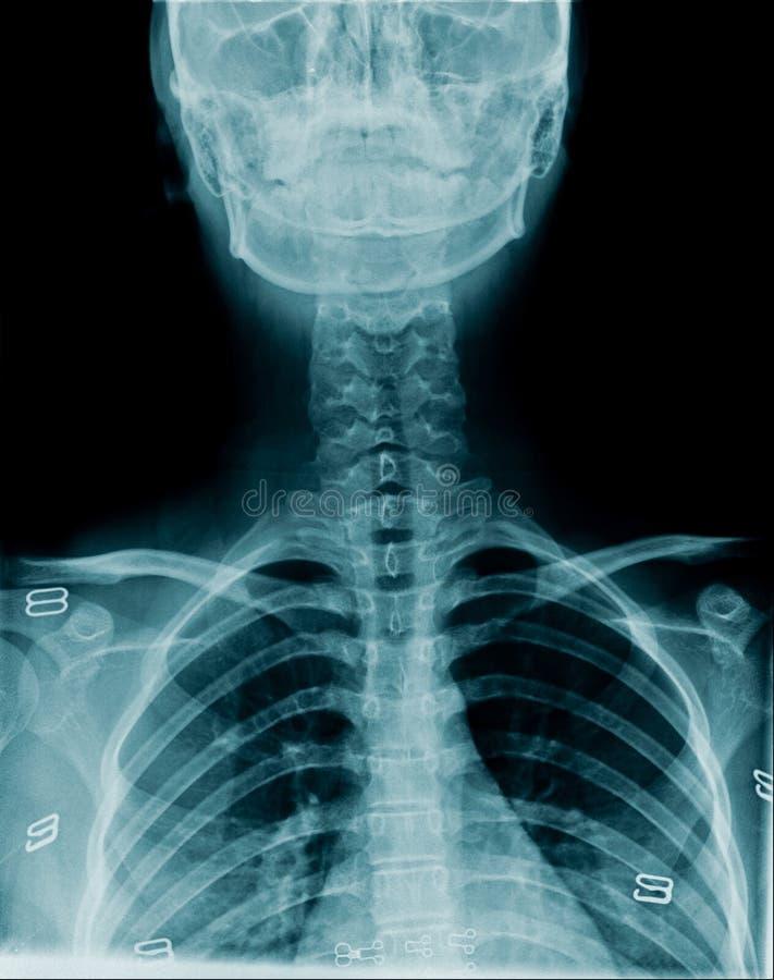 Imagen cervical de la radiograf?a de la espina dorsal imagen de archivo