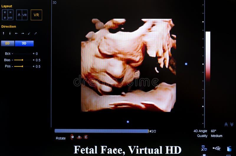 Imagen colorida del monitor del ultrasonido Fetral hace frente, HD virtual foto de archivo