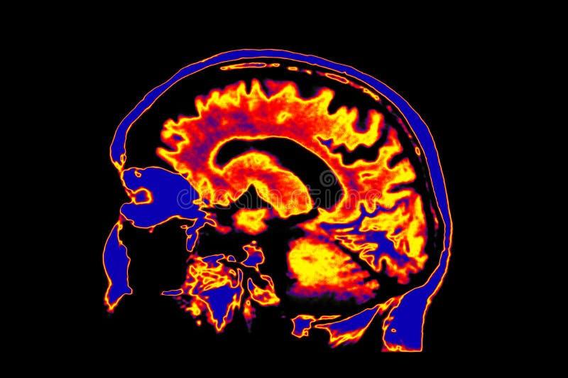 Imagen de Colorized MRI del cerebro que muestra principal foto de archivo libre de regalías