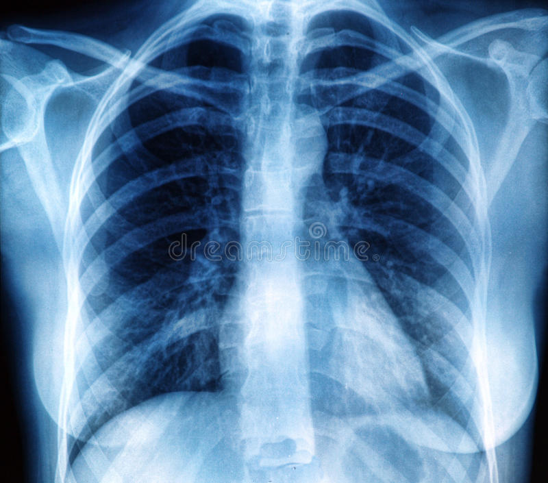 Imagen de la radiografía del pecho imagen de archivo libre de regalías