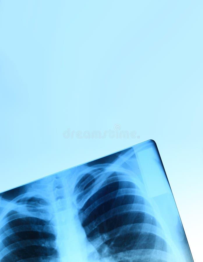 Imagen de la radiografía del pecho fotografía de archivo libre de regalías