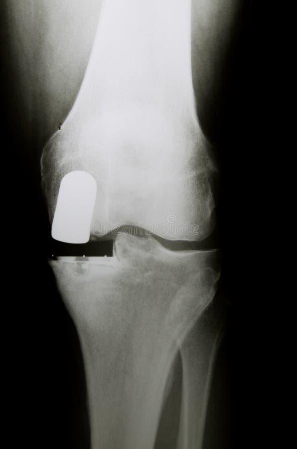 Imagen de la radiografía de la rodilla con la prótesis parcial artificial intermedia Endoprosthesis en caso de la degeneración co fotografía de archivo