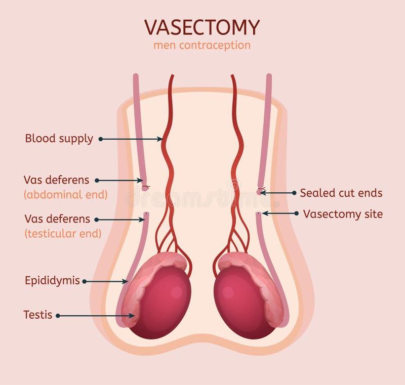 Imagen de la vasectomía del hombre libre illustration