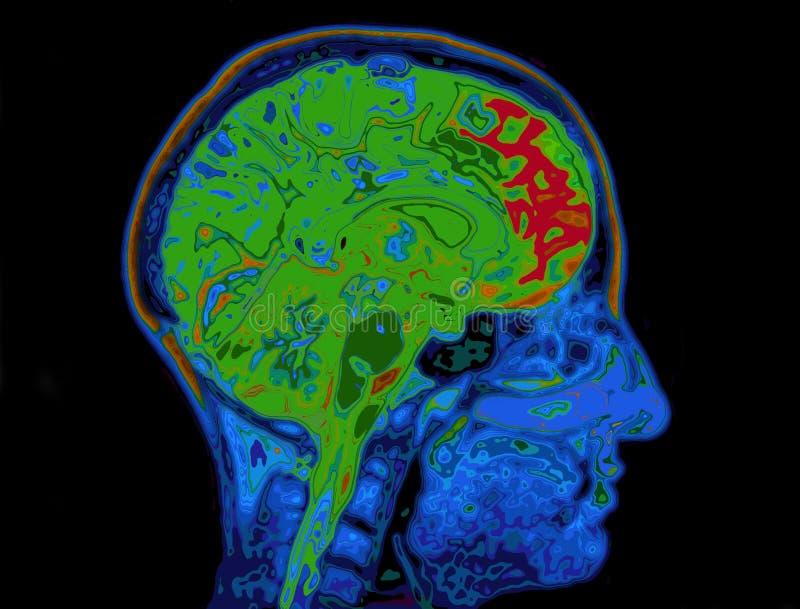 Imagen de MRI del cerebro que muestra principal imágenes de archivo libres de regalías