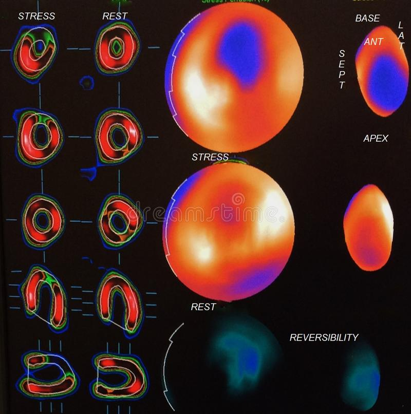 Imagen del miocardio moderada de la isquemia imagenes de archivo