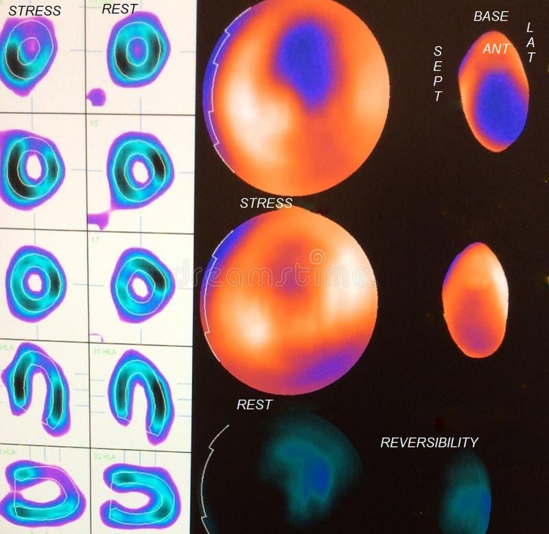Imagen del miocardio moderada de la isquemia fotografía de archivo libre de regalías