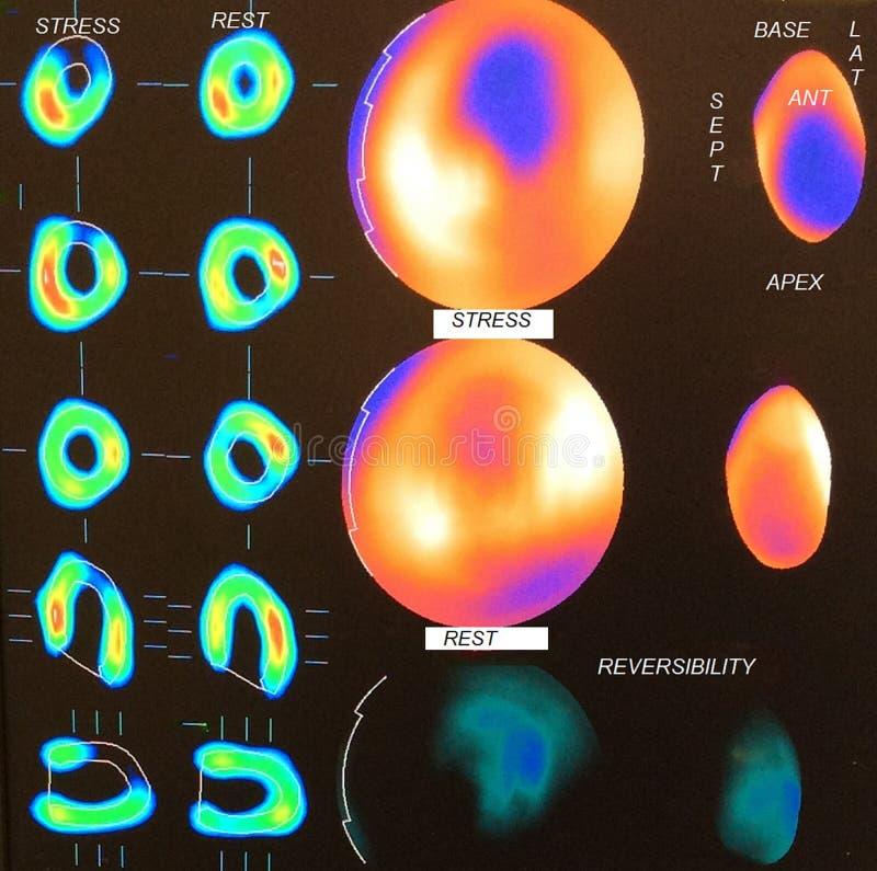 Imagen del miocardio moderada de la isquemia imagen de archivo