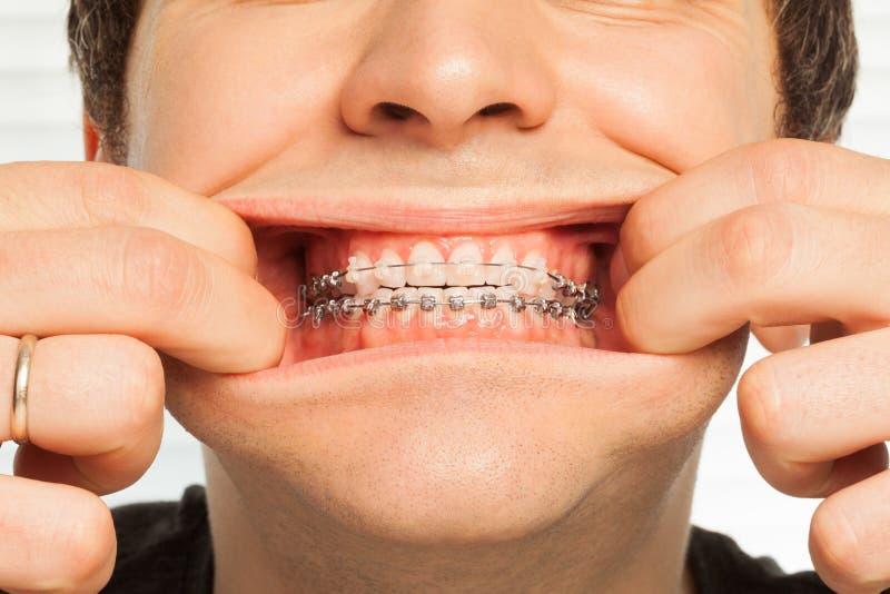 Imagen del primer del hombre que muestra apoyos dentales fotografía de archivo libre de regalías