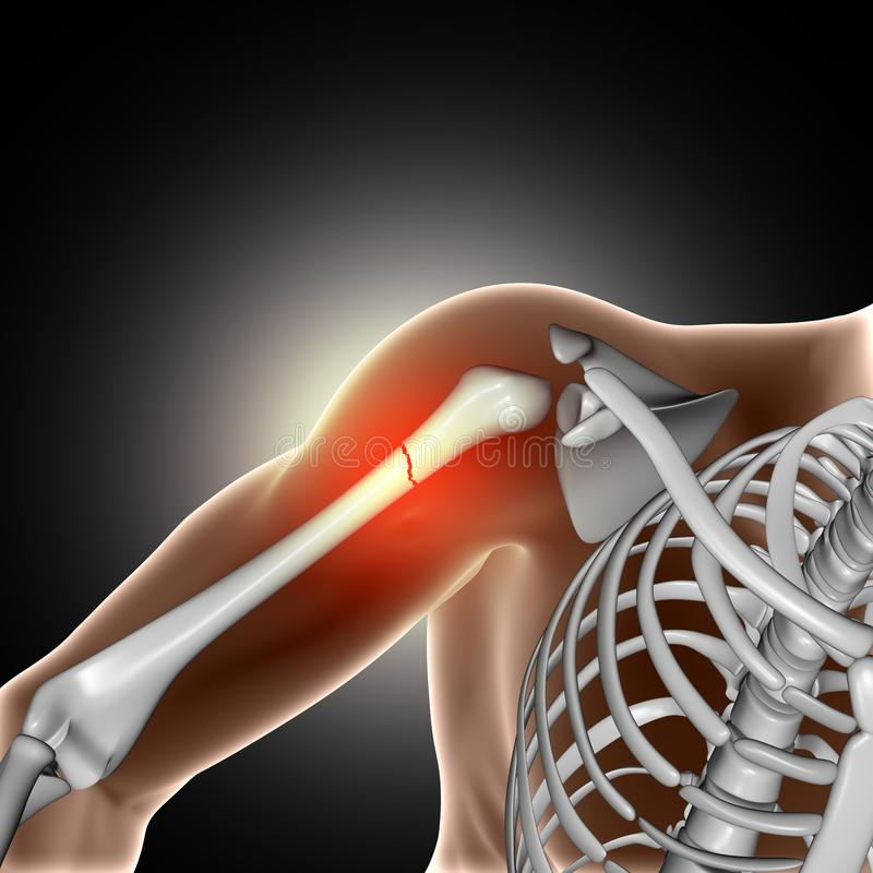 imagen médica 3D que muestra el hueso roto en brazo libre illustration