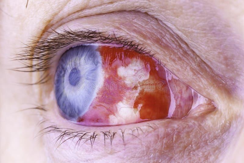 Imagen macra de un ojo inyectado en sangre rojo fotos de archivo libres de regalías