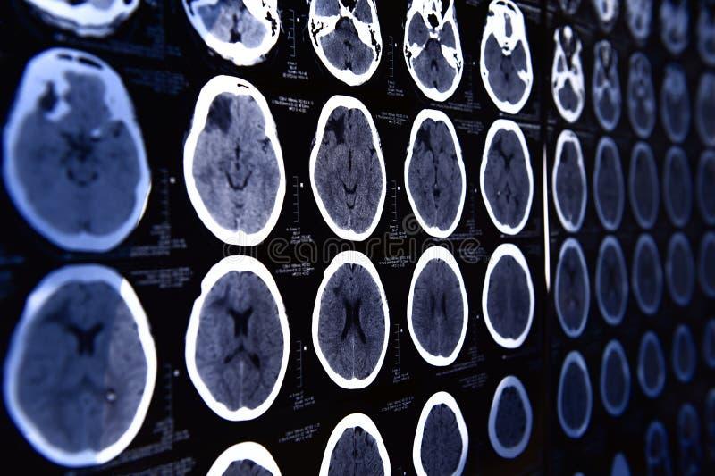 Imagens de um tomografia automatizado fotografia de stock royalty free